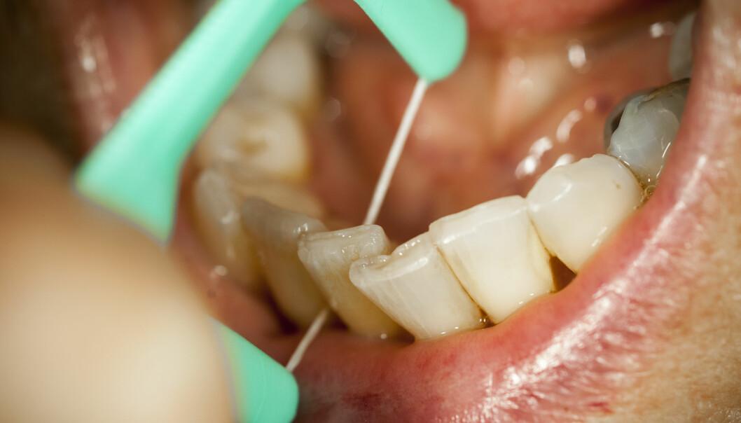 <strong>GRUNDIG RENS:</strong> Det holder ikke bare å pusse tenna for å bli kvitt dårlig ånde. Hele munnen må rengjøres.  Foto: NTB Scanpix<div><br></div>