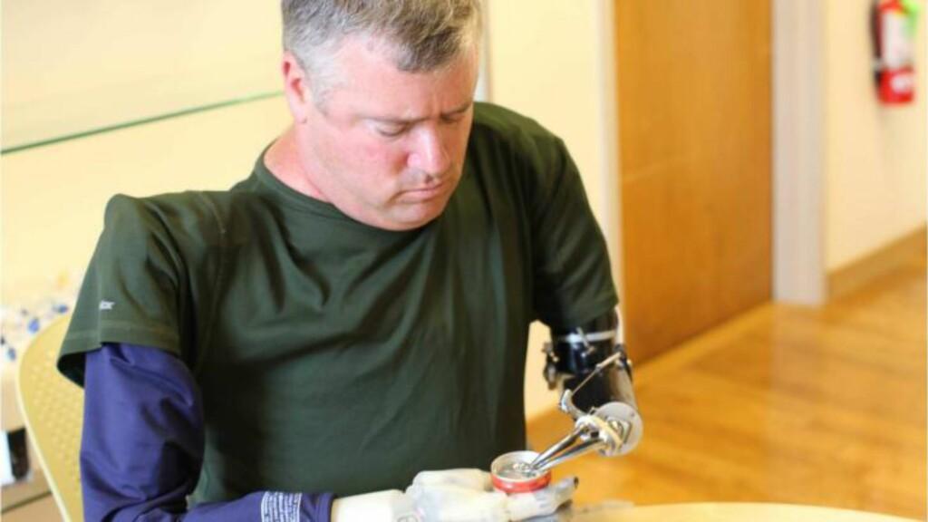 Fremskritt:  Den følsomme hånden er en videreutvikling fra den tradisjonelle protesen. Foto: DARPA