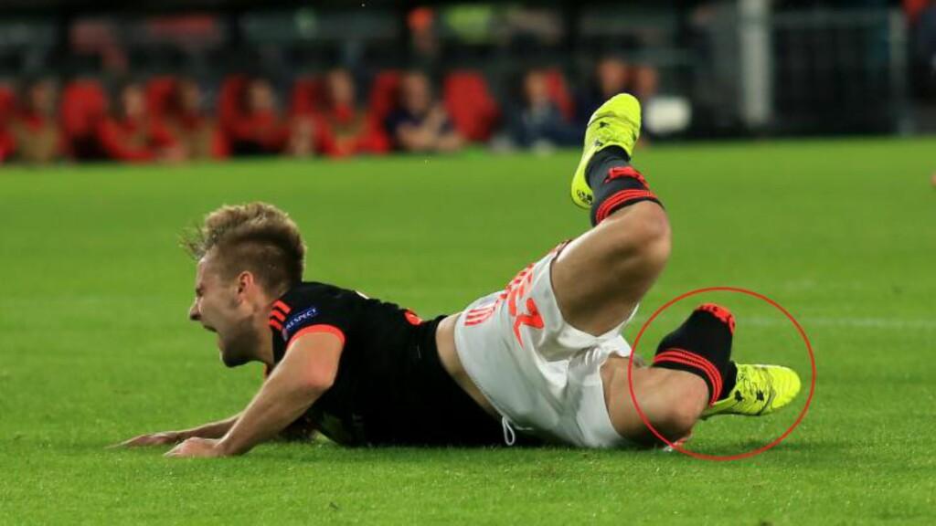 STYGT: Vinkelen på høyrebeinet sier det aller meste om smerten Luke Shaw måtte gjennom i går kveld. 20-åringen kan, om ikke annet, trøste seg med at han ikke er den eneste fotballspilleren som har blitt stygt skadet i kamp. Foto: John Walton / PA / NTB Scanpix