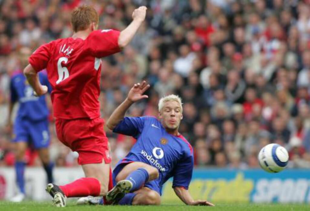 EN AV DE VERSTE: Alex Ferguson beskrev Alan Smiths skade som en av de verste han hadde sett. Foto: NTB SCANPIX / AFP / Martyn Harrison