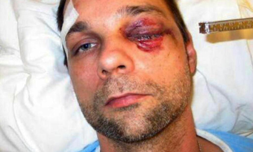 image: - Jeg er blind på det venstre øyet, har fortsatt store smerter og er delvis ufør