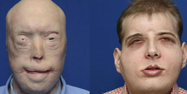 image: «Den mest omfattende ansikts-transplantasjonen noensinne» var en suksess