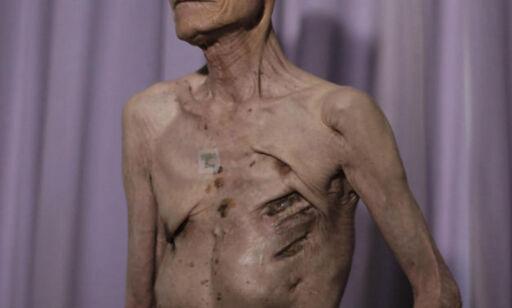 image: 70 år etter atombomba viser han fram skrekksårene