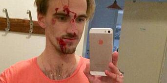 image: Axel (21) fikk bank etter å ha hindret voldtekt