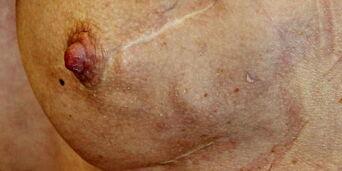 image: Kirurgen oppdaget ikke kreftsvulsten før han skulle forstørre Katarinas bryster