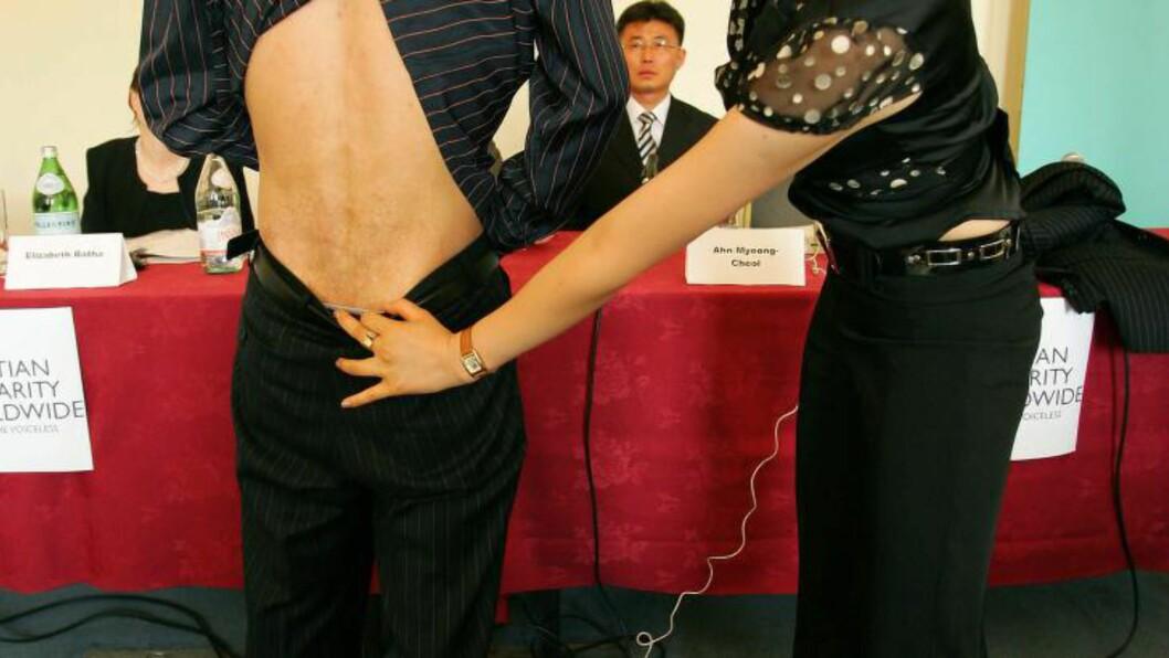 <strong>ARR:</strong> Shin Dong-Hyok viser fram ryggen under en pressekonferanse i London i 2007. Han forteller at arrene på ryggen stammer fra tortur i en nordkoreansk fangeleir. Foto:  AFP PHOTO/CARL DE SOUZA