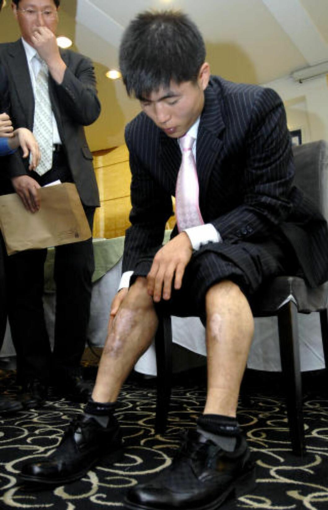 <strong>ARR:</strong> Shin Dong-Hyuk hevder å ha tilbragt 22 år i nordkoreansk fangeleir. Disse skadene skal han ha fått under en flukt fra fangeleiren.  Foto: AFP PHOTO/JUNG YEON-JE