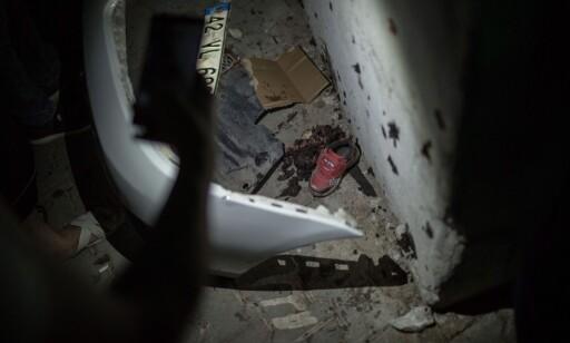 BARNESKO LÅ IGJEN: En barnesko lå igjen etter angrepet i Tyrkia. AFP PHOTO / AHMED DEEB