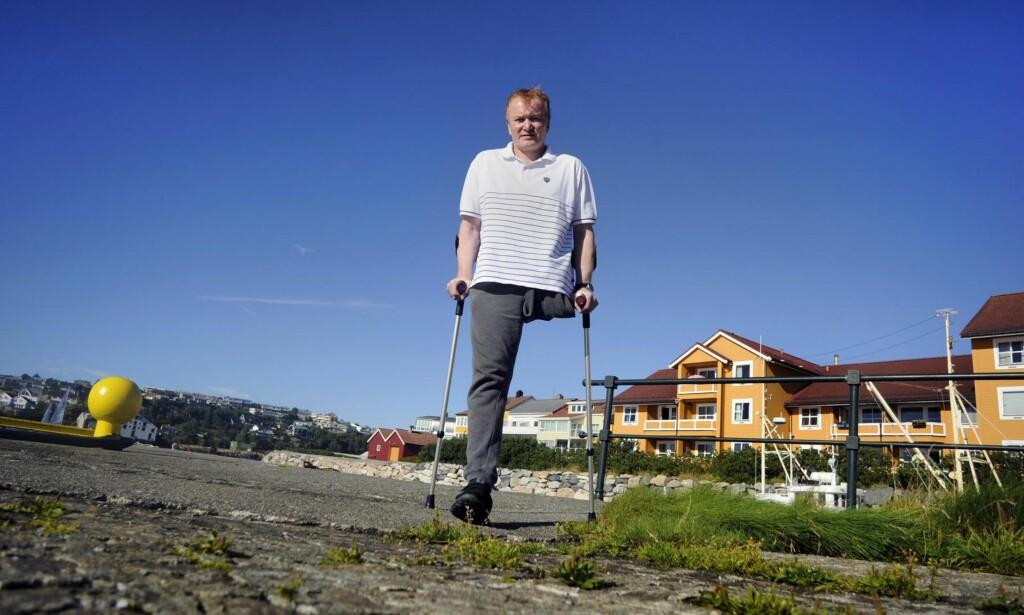 Måtte amputere: Morten Skarshaug måtte amputere hele venstre beienet etter en hissig infeksjon januar i år. For at han skulle vært dekket av forsikringen, måtte han fjernet f.eks. hånda også. – Det er sikkert mange forsikringstakere som ikke er klar over at de kan risikere å ikke få utbetalt noe som helst, sier han. Foto: Fridgeir Walderhaug
