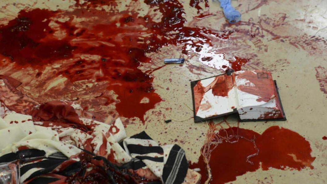 <strong>BLODIGE BILDER:</strong>  Israel sender nå ut andre og langt blodigere bilder fra terrorangrep enn tidligere. Målet er å få internasjonal støtte. Foto: Kobi Gideon/Ap/Scanpix