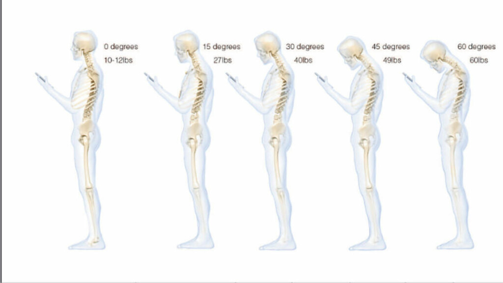 BELASTNINGEN ØKER: Belastningen på nakken øker ifølge studien eksponensielt med vinkelen på nakken. Ved en positur med 60 graders vinkel viser studien en belastning på 27,2 kilo på nakken. Skjermdump fra studien