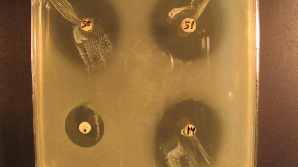 VOKSER SAMMEN: Melkesyrebakteriene i honning vokser sammen med sykdomsbakterien (gul) i tre av prøvene (de to øverste og nederst til høyre). Nederst til venstre ser man ikke-resistent antibiotika også ødelegge bakterien. Både melkesyrebakteriene og antibiotikaen dreper sykdomsbakteriene.
