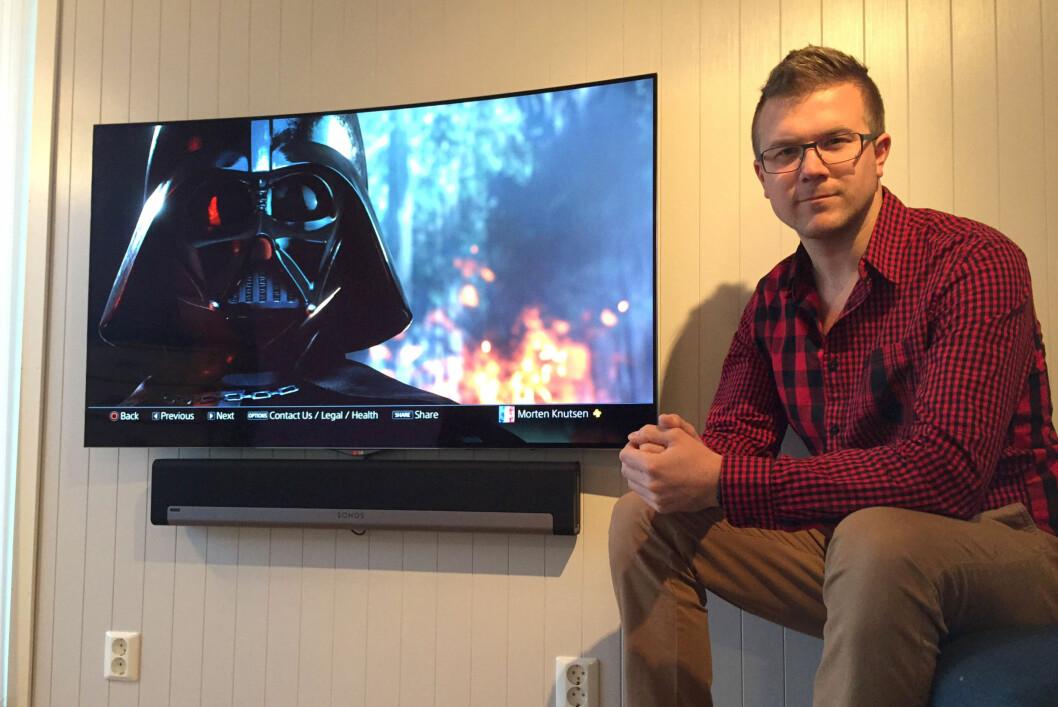 <strong><B>OPPLEVDE MARERITTET</B>:</strong> Morten Knutsen opplevde at TVNorge-logoen brant seg fast i sin nye Oled-TV til 20.000 kroner. Foto: PRIVAT