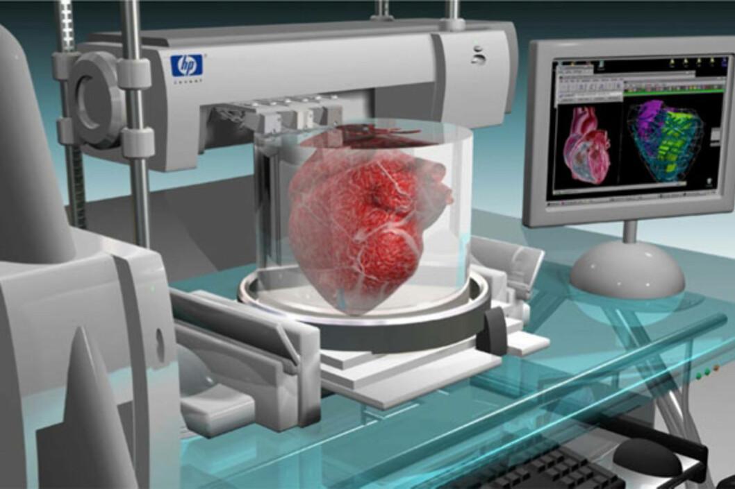 Ledende bioingeniører har stor tro på at vi om få år kan printe organer basert på pasientens egne celler. Hjerte, lever og ødelagte lemmer vil dermed kunne erstattes uten behov for donor. Foto: HP