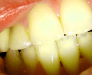 Derfor får du gule tenner