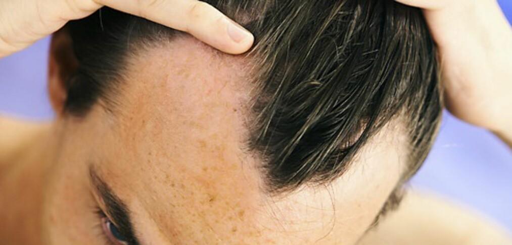 Mister du håret? Prøv dette