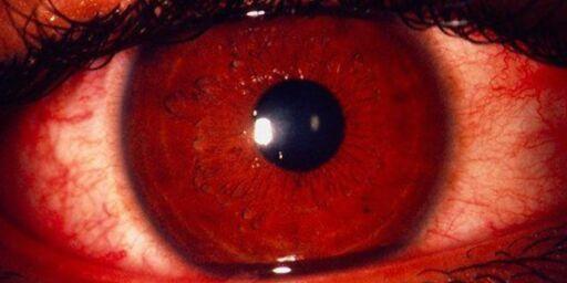 image: Du kan få klamydia på øyet