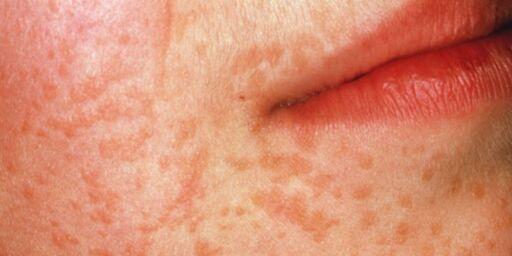 image: Har du «bulkete» hud?
