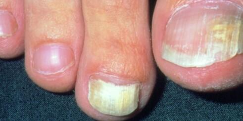 Slik klipper du tåneglene