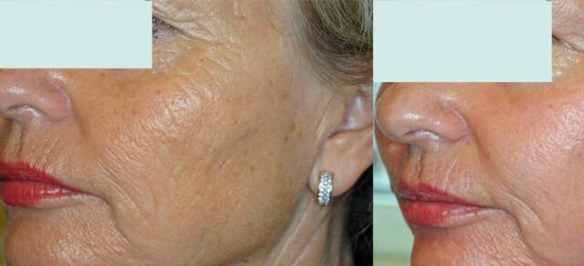 ff5f25f7 Før behandlingen (til venstre) og 14 dager etter bahandlingen (til høyre).