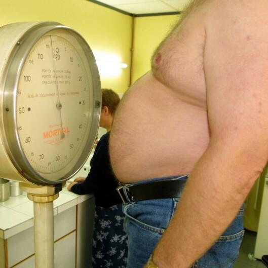 Det såkalte grådighetsgenet kan være svaret på hvorfor noen har vanseligere for å gå ned i vekt. Illustrasjonsfoto: Colourbox Foto: Illustrasjonsfoto: Colourbox
