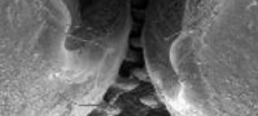 Forskerne ble lamslått da de så mellom beina til plantesugeren
