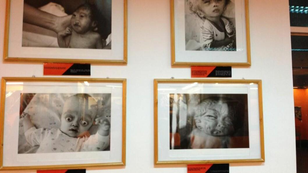 <strong>REN ONDSKAP:</strong>   Barnebilder fra Krigsmuseet i Ho Chi Minh-byen, Vietnam. Du finner de samme lidelsene på et senter like ved for Agent Orange-ofre og ellers alt for mange steder utover hele Vietnam.  FOTO: Esten O. Sæther/Dagbladet).