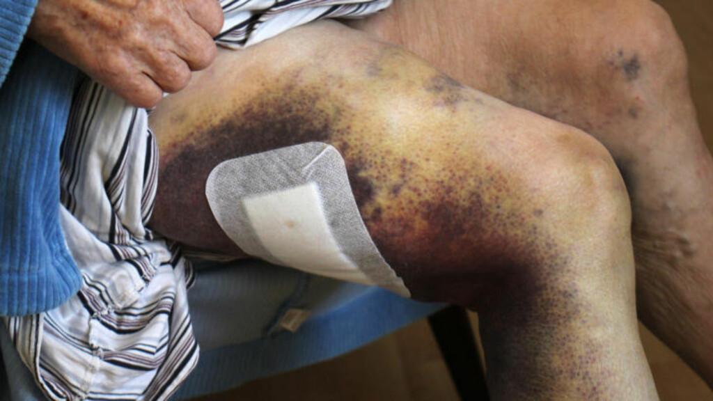 LILLA: Paulsen har fått svære blåmerker på beina etter at han ble klemt under firhjulingen sammen med samboeren. Foto: Stian Hansen / Finnmarken