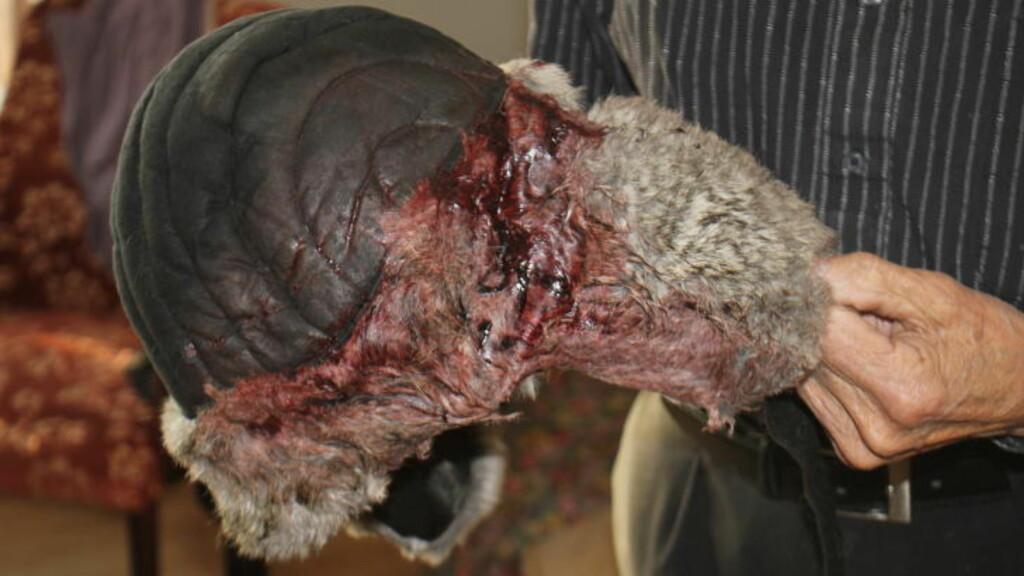BLODIG: Lua til Paulsen er full av blod, etter at han ble truffet av en jernstang. Foto: Stian Hansen / Finnmarken