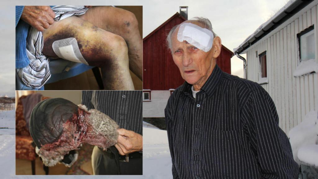 FORSLÅTT: Nils Edvin Paulsen har synlige skader etter at han havnet under firhulingen utenfor hjemmet sitt i Nesseby i Finnmark. Foto: Stian Hansen / Finnmarken