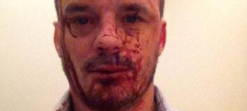 Cristopher ble overfalt etter egen bursdagsfest