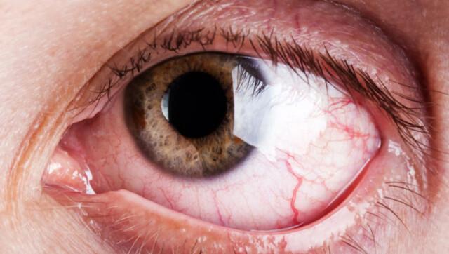 et øye rødt