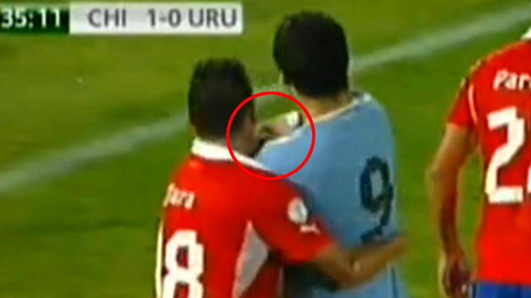 <strong>SLAGKRAFTIG:</strong> Luis Suarez slapp unna rødt for dette i nattas nedelag mot Chile. Skjermdump: CHV Vivo