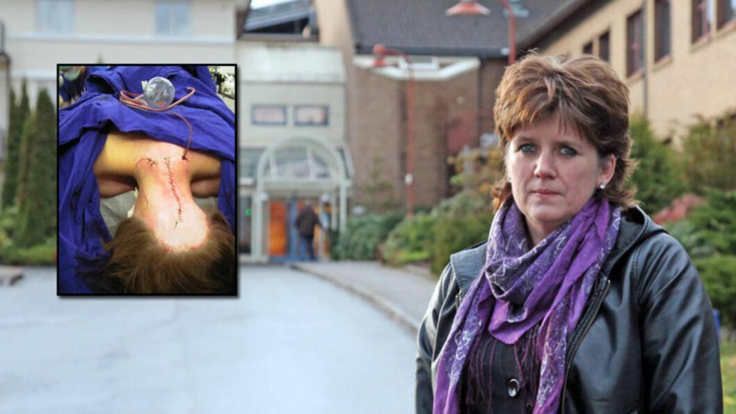<strong>TAPTE ANKESAKEN:</strong> Nakkeopererte Liv Oddhild Lyng (50) mener behandlingen hun fikk på sykehuset ødela helsa. Det er ikke Borgarting lagmannsrett enig i. Foto: Privat/Stig Høynes