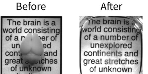 image: Hjernen til høyre er helt intakt