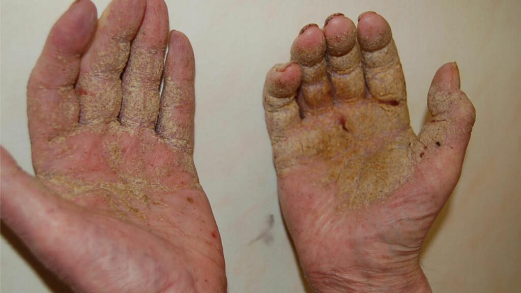 Disse hendene tilhører skabbpasient i Stavanger - Dagbladet
