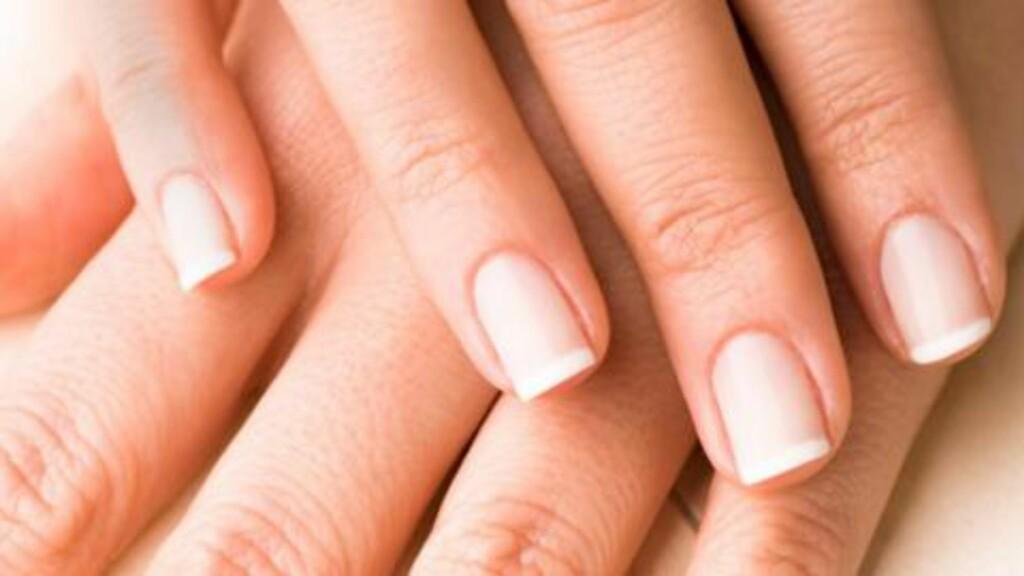 HVITE FLEKKER: Dette er skader på neglen og ikke kalkmangel slik en del tror.  FOTO: Thinkstock