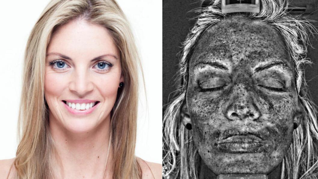 Hudskanner: Skanneren viser skadene du får av soling. Her har Kelly Hughes skannet ansiktet sitt. Foto: Cancer Research UK