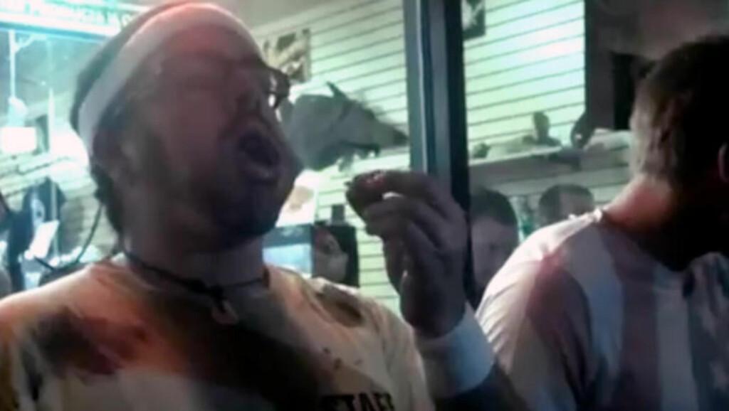 DØDE LIKE ETTER KONKURRANSEN: Edward Archbold kollapset og døde etter å ha deltatt i en konkurranse der det var om å gjøre å spise flest insekter på kortest mulig tid. Archbold vant konkurransen, men døde kun minutter senere. Prisen deltakerne kjempet for, var en pytonslange verdt rundt 5 000 kroner. Bildet er hentet fra en video av konkurransen. Foto: AP / Scanpix / John-Patrick McNown