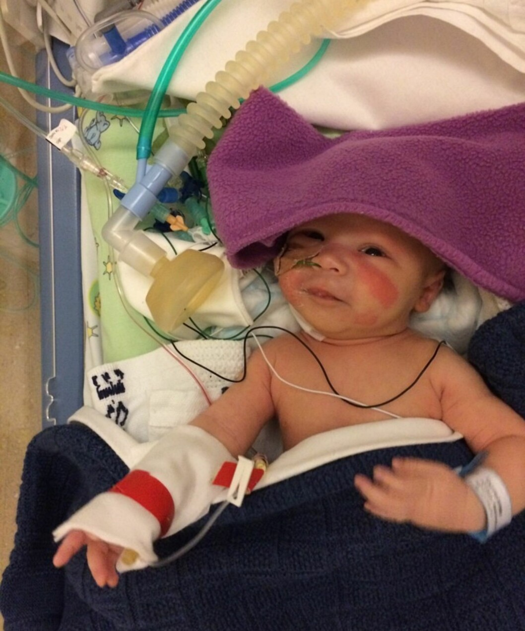 TØFF START PÅ LIVET: Markus var bare 13 dager gammel da han ble operert for kreft. Foto: Privat