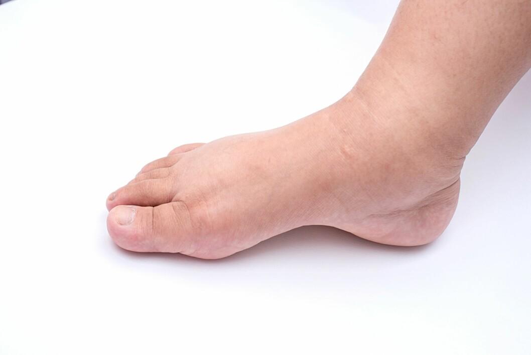 VANN I KROPPEN: Væskeopphopning i vevet oppstår vanligvis i beina, men man kan også se det i ansiktet og på hendene.  Foto: NTB Scanpix