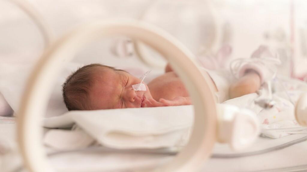 e4dacc556b7 <b>FOR TIDLIG FØDT:</b> Med dagens helseteknologi vil barn