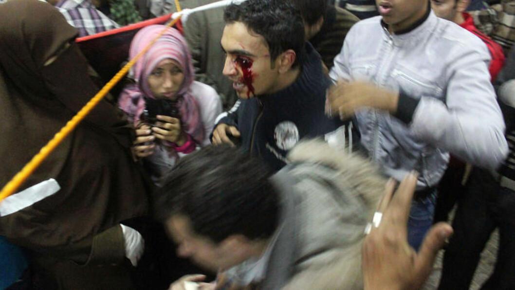<strong>FRAKTES TIL SYKEHUS:</strong> Enda en demonstrant later til å være skutt i øyet, og blir fraktet til syjehus for behandling. En egyptisk politimann anklages for å skyte ut øynene på demonstranter på Tahrir-plassen. Minst fem demonstranter skal ha blitt påført slike skader. Foto: Mahmud Khaled/AFP