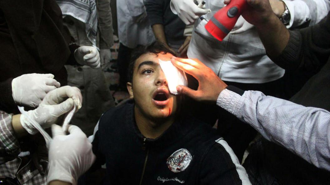 <strong>ØYESKADE:</strong> En egyptisk demonstrant er skadet i øyet, og får behandling på et feltsykehus i Kairo, etter dødlige sammenstøt med sikkerhetsstyrkene sist søndag. Foto: Mahmud Khaled/AFP