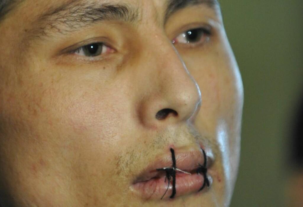 SYDD SJØL: Denne fangen sitter fengslet i Kirgisistans hovedstad Bisjkek, og har sydd igjen sine egne lepper i protest mot de tøffe forholdene i fengselet. Nå er sultestreiken avsluttet. Foto: VYACHESLAV OSELEDKO / AFP PHOTO