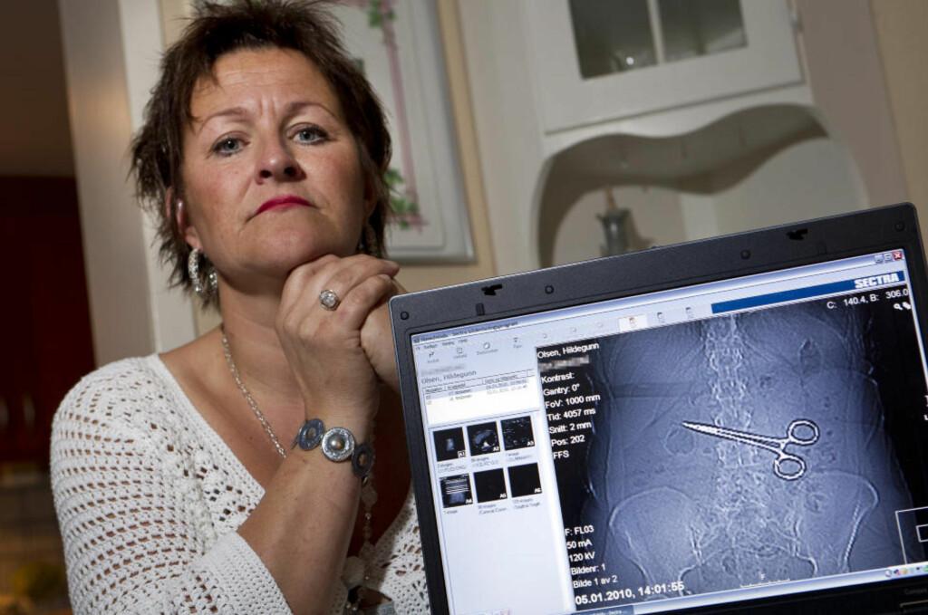 SMERTEFULLT: Hildegunn Olsen (42) har hatt store helseproblemer etter at kirurgene glemte igjen ei saks i magen hennes for snart to år siden. Da legene skulle operere saksa ut igjen, gjorde de nok en feil som førte til at hun fikk brannskade på ryggen. Foto: Ole Morten Melgård