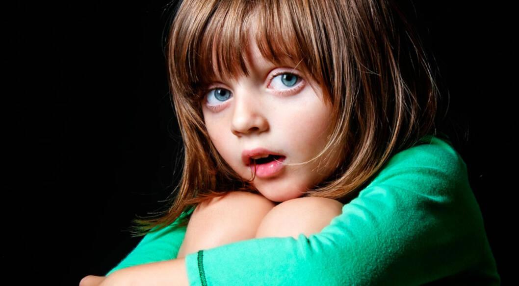 <b>MØRKE SKYGGER UNDER ØYNENE OG HØYT AKTIVITETSNIVÅ:</b> Barns tegn på lite søvn Foto: Shutterstock ©