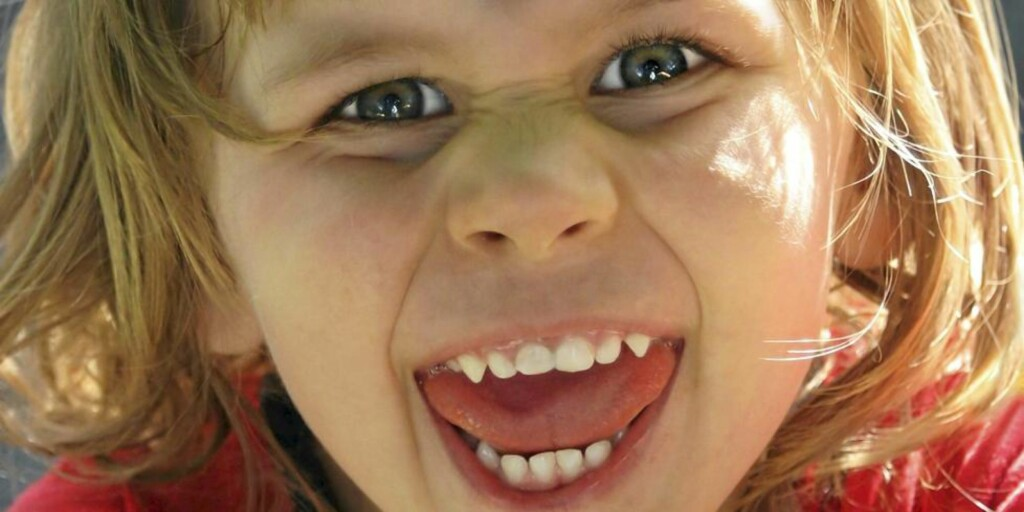 BITER TIL: Barn kan bite fordi de mangler språk til å uttrykke følelsene med. Det er ikke uvanlig at barn går gjennom en biteperiode før de fyller to. Foto: iStockphoto