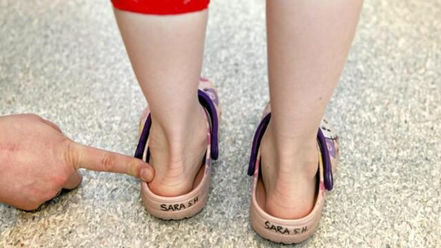40dae8f0 FEIL BARNESKO: Altfor mange barn går med for små sko og sko uten hælstøtte.