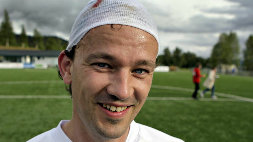 FIKK SKO I HODET:  Den danske spilleren Peter Hørup fikk en norsk fotballsko planta i hodet så blodet rant. Etter en kvikk tur på sykehuset, var den danske landslagsspilleren tilbake på bana. Foto: Lars Eivind Bones/Dagbladet